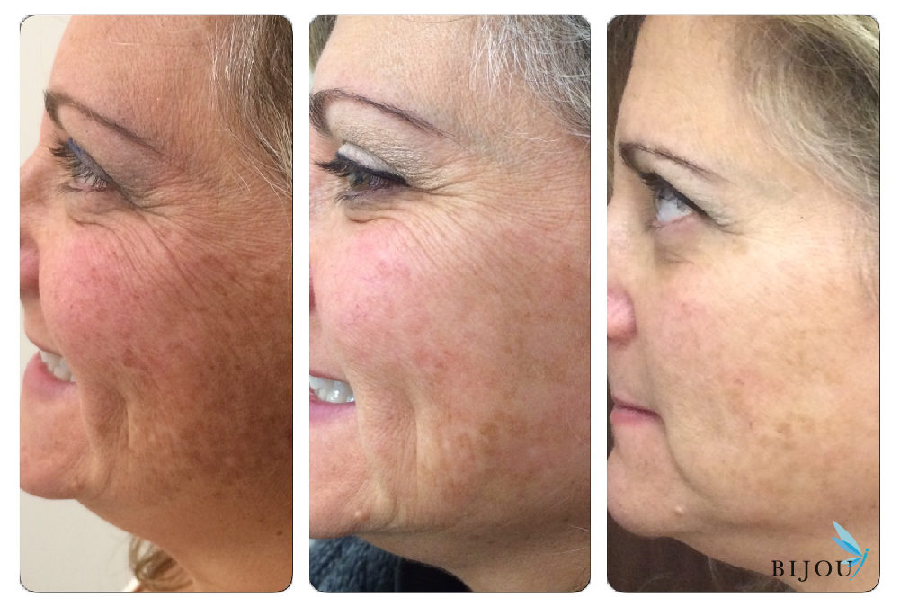 Women receiving IPL laser treatment to remove pigmentation and sunspots